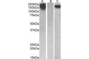 Western Blotting (WB) image for anti-CSF1R antibody (Colony Stimulating Factor 1 Receptor) (Internal Region) (ABIN569621)