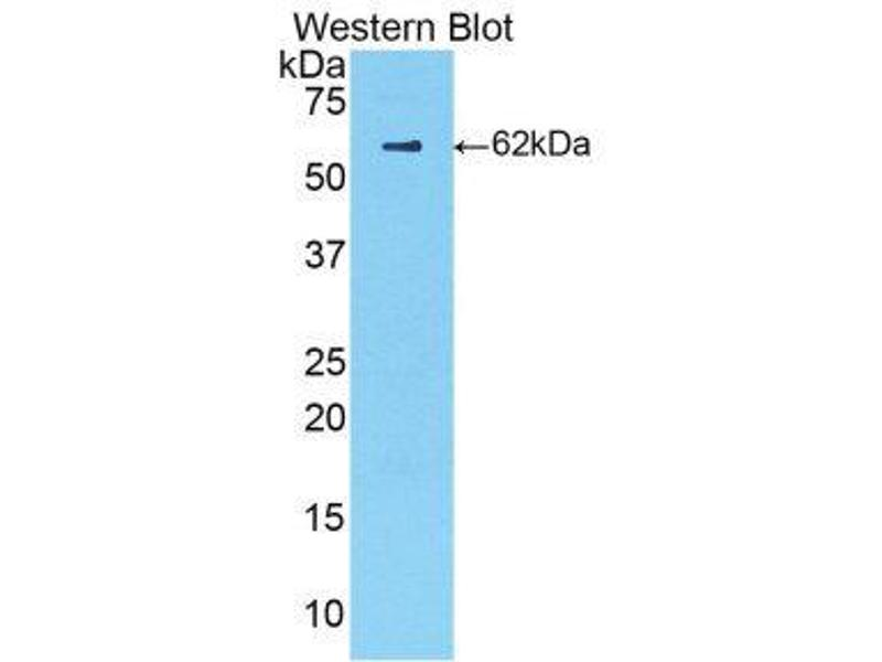 Western Blotting (WB) image for anti-Complement Factor B (CFB) (AA 34-159) antibody (ABIN1858377)