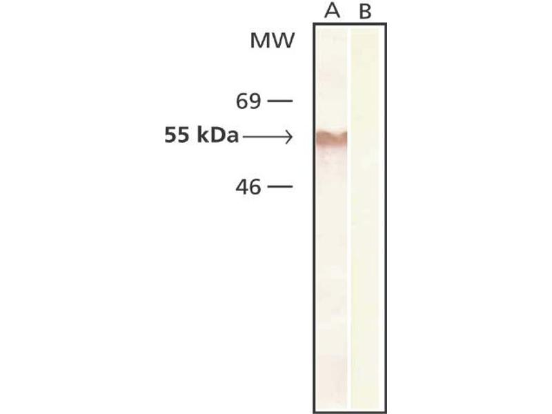 Western Blotting (WB) image for anti-Tubulin, beta 2A (TUBB2A) antibody (ABIN265863)