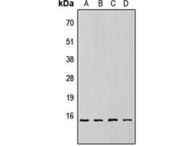 Western Blotting (WB) image for anti-Eukaryotic Translation Initiation Factor 4E Binding Protein 1 (EIF4EBP1) (pSer69) antibody (ABIN2705356)