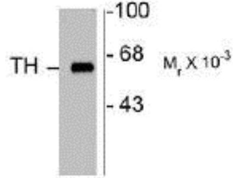 Western Blotting (WB) image for anti-tyrosine Hydroxylase (TH) antibody (ABIN152458)