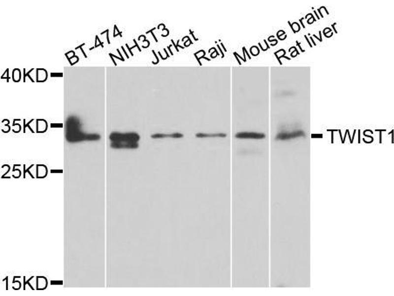 Western Blotting (WB) image for anti-Twist Homolog 1 (Drosophila) (TWIST1) antibody (ABIN2970843)