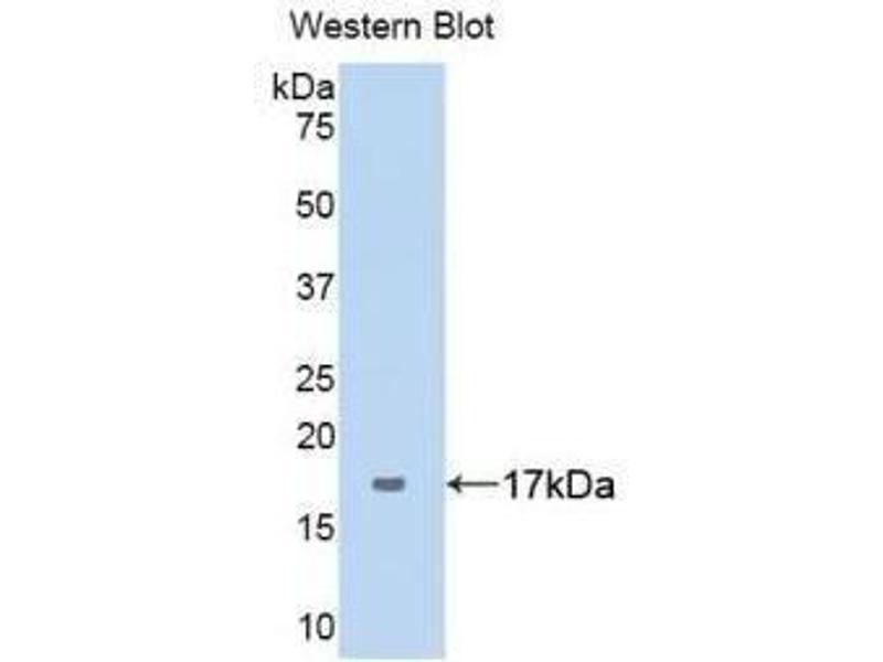 Western Blotting (WB) image for anti-Serpin Peptidase Inhibitor, Clade G (C1 Inhibitor), Member 1 (SERPING1) (AA 399-500) antibody (ABIN1172647)
