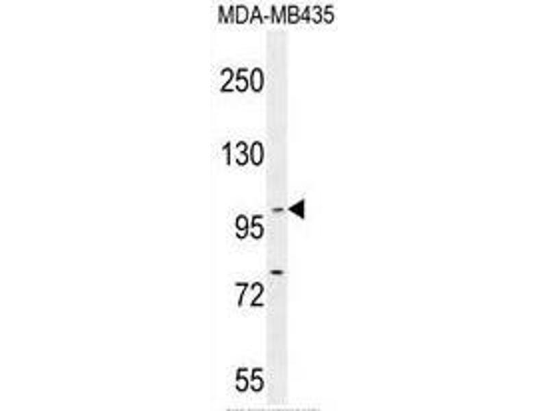 Western Blotting (WB) image for anti-BACH2 antibody (BTB and CNC Homology 1, Basic Leucine Zipper Transcription Factor 2) (C-Term) (ABIN950597)