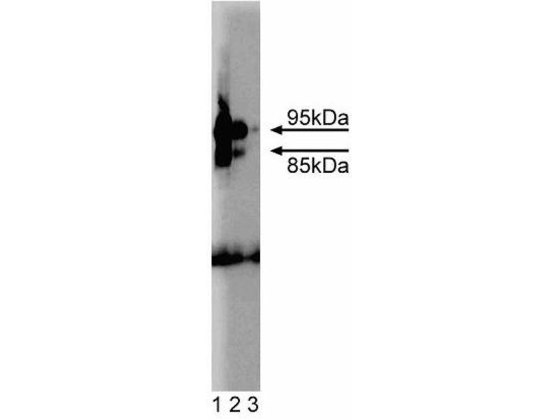 Western Blotting (WB) image for anti-phosphodiesterase 5A, CGMP-Specific (PDE5A) (AA 2-108) antibody (ABIN968564)