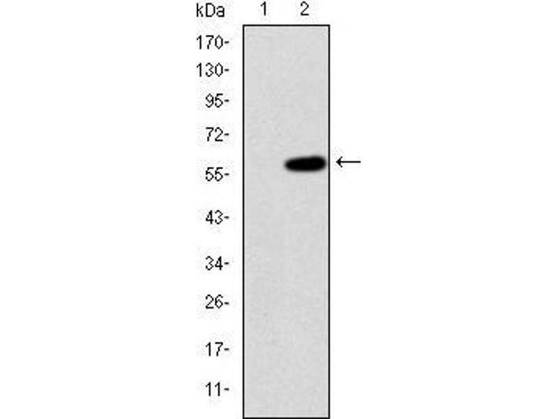 Western Blotting (WB) image for anti-MAP3K2 antibody (Mitogen-Activated Protein Kinase Kinase Kinase 2) (ABIN969272)