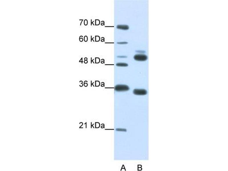 Western Blotting (WB) image for anti-WD Repeat Domain 6 (WDR6) (C-Term) antibody (ABIN184111)