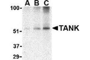 Image no. 3 for anti-TRAF Family Member-Associated NFKB Activator (TANK) (C-Term) antibody (ABIN500867)