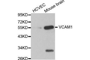 Image no. 2 for anti-Vascular Cell Adhesion Molecule 1 (VCAM1) antibody (ABIN3020869)
