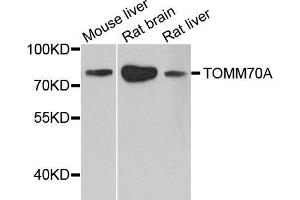 Image no. 1 for anti-Translocase of Outer Mitochondrial Membrane 70 (TOMM70A) antibody (ABIN1683089)