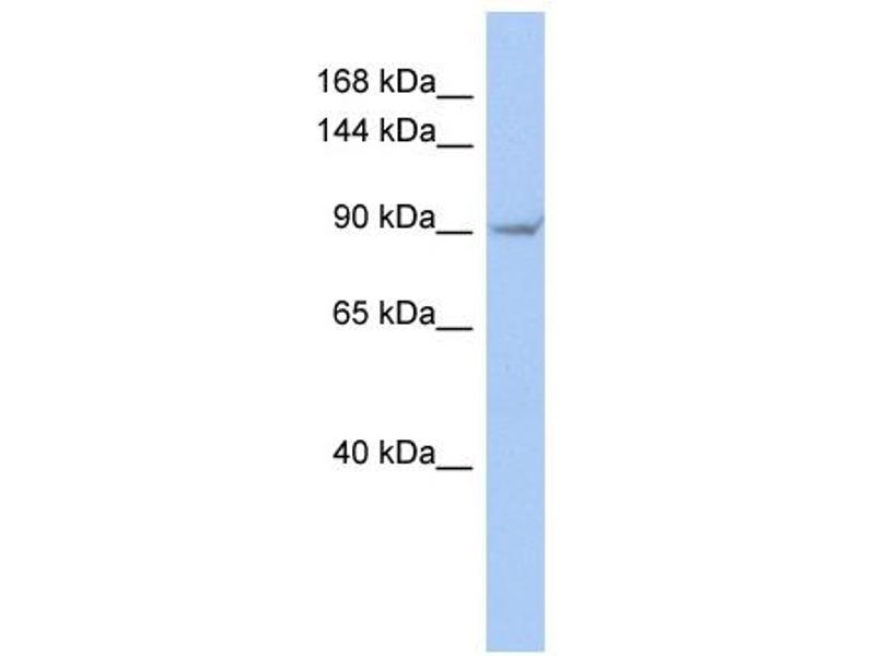 Western Blotting (WB) image for anti-Transient Receptor Potential Cation Channel, Subfamily V, Member 4 (TRPV4) (Middle Region) antibody (ABIN2776284)