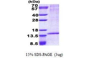 Image no. 1 for RAB8B, Member RAS Oncogene Family (RAB8B) (AA 1-204) protein (His tag) (ABIN5853051)