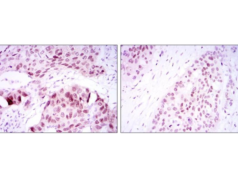 Immunohistochemistry (IHC) image for anti-SOX2 antibody (SRY (Sex Determining Region Y)-Box 2) (ABIN969414)