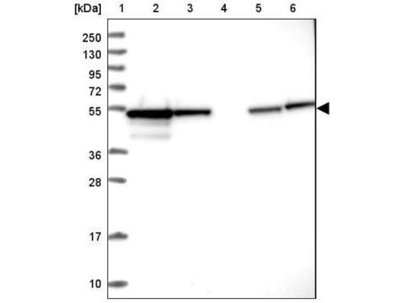 Western Blotting (WB) image for anti-Protein Phosphatase 2, Regulatory Subunit B, beta (PPP2R2B) antibody (ABIN4347091)