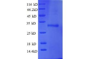 Image no. 1 for Ubiquitin-Conjugating Enzyme E2W (Putative) (UBE2W) (AA 1-151), (full length) protein (His-SUMO Tag) (ABIN5711601)