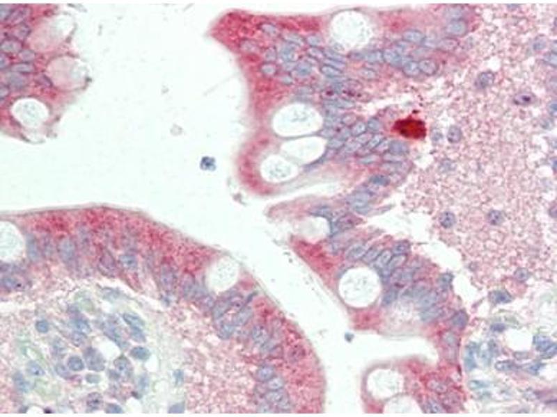 Immunohistochemistry (Paraffin-embedded Sections) (IHC (p)) image for anti-Stromal Interaction Molecule 2 (Stim2) antibody (ABIN615255)