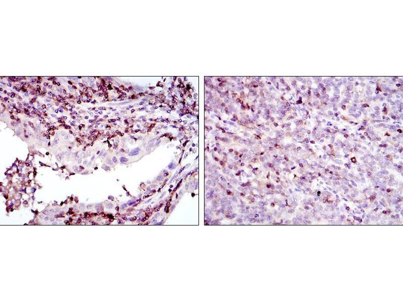 Immunohistochemistry (IHC) image for anti-Adrenergic, Beta, Receptor Kinase 1 (ADRBK1) antibody (ABIN969178)