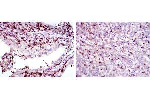 Immunohistochemistry (IHC) image for anti-Adrenergic, Beta, Receptor Kinase 1 (ADRBK1) antibody (ABIN969178)