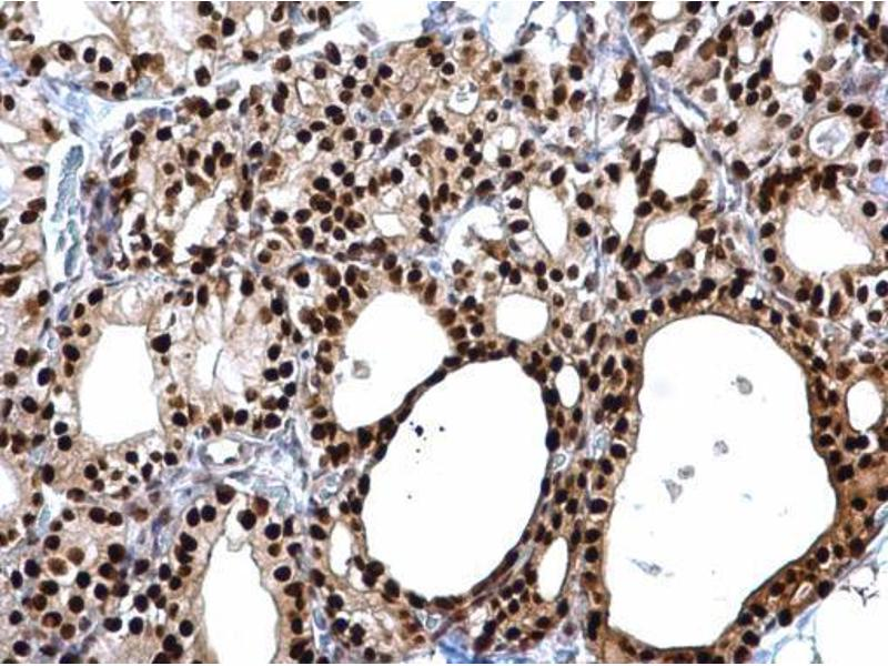 Immunohistochemistry (IHC) image for anti-Paired Box 8 (PAX8) (Center) antibody (ABIN2855097)