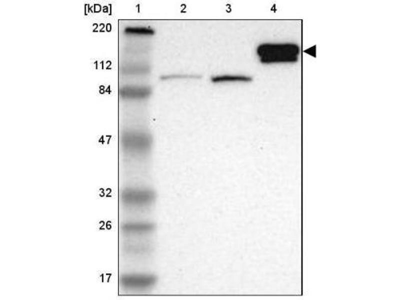 Western Blotting (WB) image for anti-Hephaestin (HEPH) antibody (ABIN4317043)