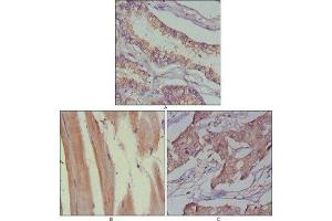 Immunohistochemistry (Paraffin-embedded Sections) (IHC (p)) image for anti-MUSK antibody (Muscle, Skeletal, Receptor Tyrosine Kinase) (ABIN4336818)