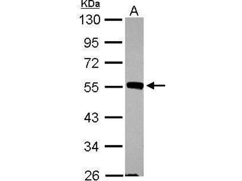 Western Blotting (WB) image for anti-MAPK9 antibody (Mitogen-Activated Protein Kinase 9) (Center) (ABIN2856116)