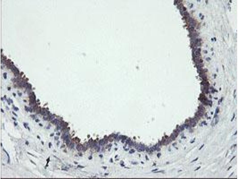image for anti-Receptor (TNFRSF)-Interacting serine-threonine Kinase 1 (RIPK1) (AA 133-422) antibody (ABIN1490909)