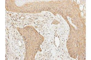 Immunohistochemistry (Paraffin-embedded Sections) (IHC (p)) image for anti-Cortactin (CTTN) (Center) antibody (ABIN4300127)