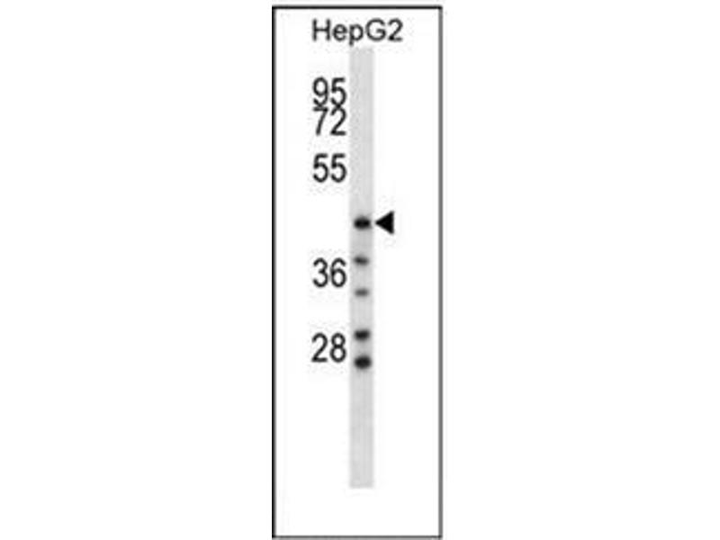 Western Blotting (WB) image for anti-Hyaluronidase-1 (HYAL1) (AA 279-309), (C-Term) antibody (ABIN952807)