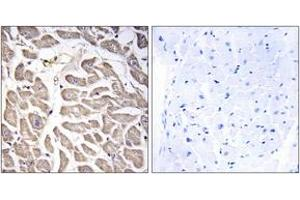 Immunohistochemistry (IHC) image for anti-Bromodomain and WD Repeat Domain Containing 3 (BRWD3) (AA 1751-1800) antibody (ABIN1534706)