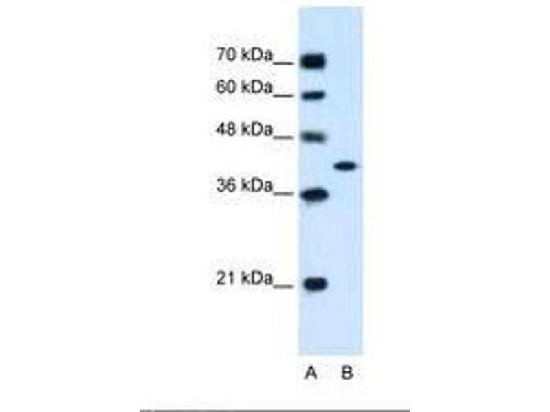 image for anti-Glutamic-Oxaloacetic Transaminase 2, Mitochondrial (Aspartate Aminotransferase 2) (GOT2) (AA 329-378) antibody (ABIN320796)