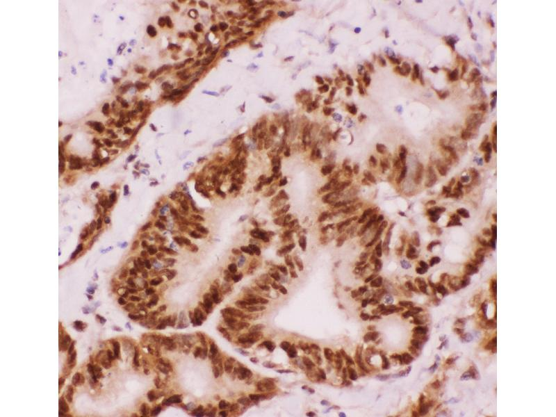 Immunohistochemistry (IHC) image for anti-ATF2 antibody (Activating Transcription Factor 2) (AA 93-450) (ABIN3043791)