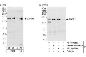 Western Blotting (WB) image for anti-PPP1R13B antibody (Protein Phosphatase 1, Regulatory Subunit 13B) (AA 50-100) (ABIN258278)