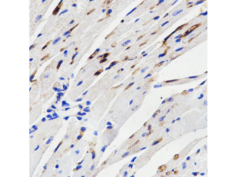 Immunohistochemistry (IHC) image for anti-Mitogen-Activated Protein Kinase 14 (MAPK14) antibody (ABIN3023294)