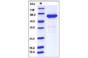 image for 5'-Nucleotidase, Ecto (CD73) (NT5E) (AA 1-547) (Active) protein (His tag) (ABIN3216390)