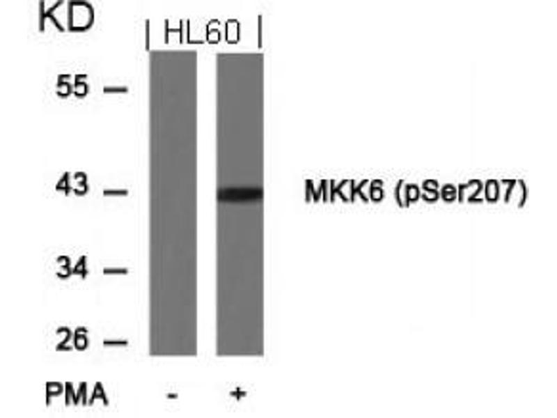 image for anti-MAP2K6 antibody (Mitogen-Activated Protein Kinase Kinase 6) (pSer207) (ABIN196864)