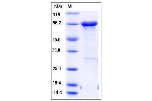 Image no. 1 for Metastasis Suppressor 1 (MTSS1) (AA 1-250) protein (MBP tag,His tag) (ABIN2005419)