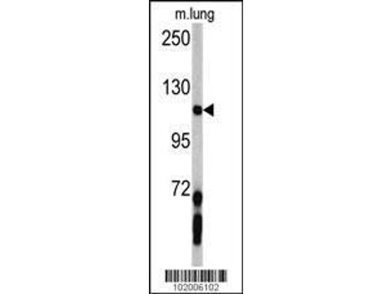 Western Blotting (WB) image for anti-PDGFRA antibody (Platelet-Derived Growth Factor Receptor, alpha Polypeptide) (AA 1048-1077) (ABIN392022)
