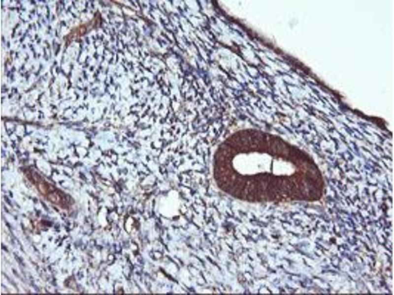 Image no. 7 for anti-Acetyl-CoA Acyltransferase 2 (ACAA2) antibody (ABIN2715630)