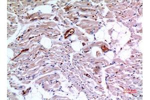 Image no. 3 for anti-Isocitrate Dehydrogenase 3 (NAD+) alpha (IDH3A) (Internal Region) antibody (ABIN3187834)