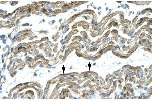 Immunohistochemistry (IHC) image for anti-Zinc Finger Protein 828 (ZNF828) (Middle Region) antibody (ABIN2777477)