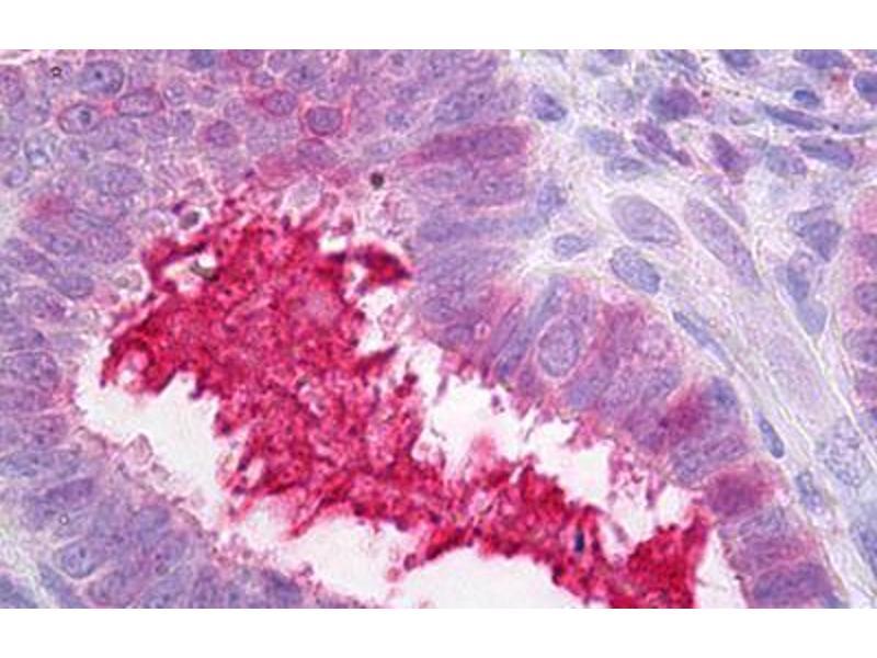 image for anti-Serpin Peptidase Inhibitor, Clade G (C1 Inhibitor), Member 1 (SERPING1) antibody (ABIN1502156)