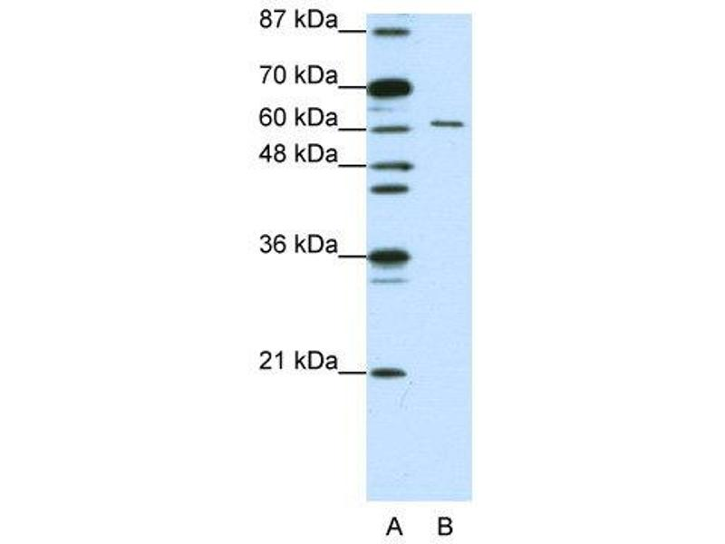 Western Blotting (WB) image for anti-CUGBP, Elav-Like Family Member 2 (CELF2) (N-Term) antibody (ABIN183930)