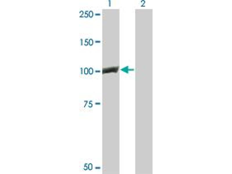 Western Blotting (WB) image for anti-Catenin (Cadherin-Associated Protein), beta 1, 88kDa (CTNNB1) (AA 682-782) antibody (ABIN394959)