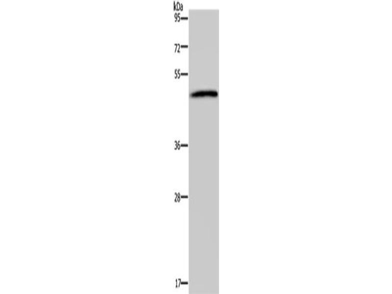 Western Blotting (WB) image for anti-Serotonin Receptor 2B (HTR2B) antibody (ABIN2427711)
