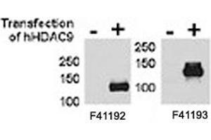 Image no. 2 for anti-Histone Deacetylase 9 (HDAC9) (AA 503-533) antibody (ABIN3031238)