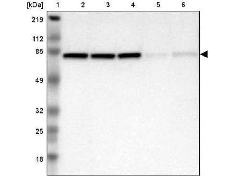 Western Blotting (WB) image for anti-DEAD (Asp-Glu-Ala-Asp) Box Polypeptide 3, X-Linked (DDX3X) antibody (ABIN4304628)