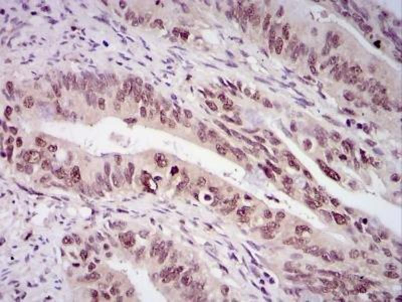 Immunohistochemistry (Paraffin-embedded Sections) (IHC (p)) image for anti-Survivin antibody (BIRC5) (ABIN153009)
