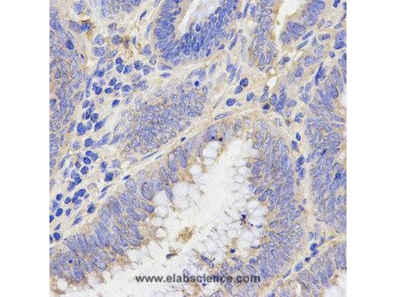 Immunohistochemistry (IHC) image for anti-RHOC antibody (Ras Homolog Gene Family, Member C) (ABIN2403816)