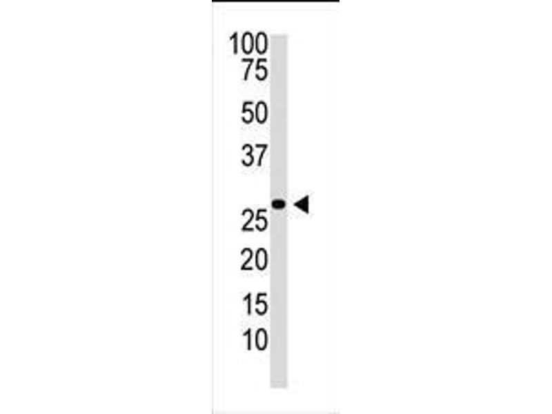 Western Blotting (WB) image for anti-Dickkopf 2 Homolog (Xenopus Laevis) (DKK2) (AA 31-62), (N-Term) antibody (ABIN388353)